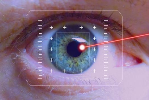 Operazione agli occhi Marzio Vanzini Cataratta Bologna Laser Oculista Agopuntura Bologna